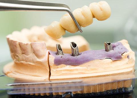 دریافت مجوز رشته ساخت پروتز های دندانی در سبزوار